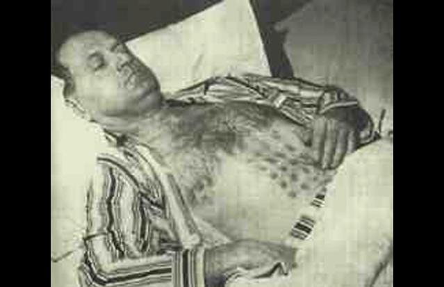 Heridas de quemadura en el vientre